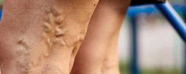Varices des jambes